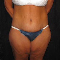 Patient After Body Contouring Surgery