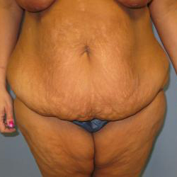 Patient Before Body Contouring Surgery