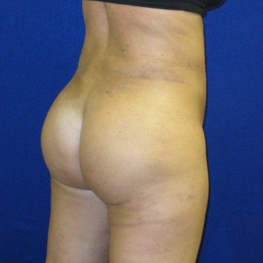 Patient After Brazilian Butt Lift Surgery