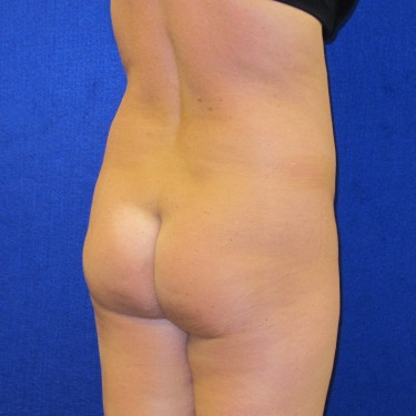 Patient Before Brazilian Butt Lift Surgery