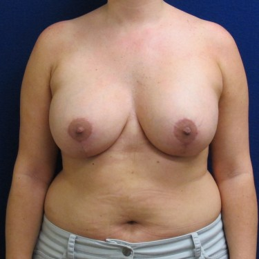 Patient After Breast Lift Surgery