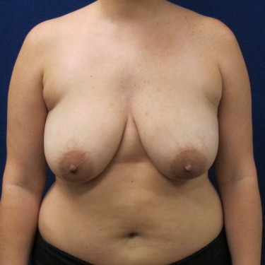 Patient Before Breast Lift Surgery