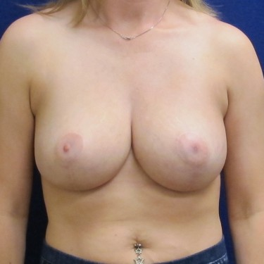 Patient After Breast Reduction Surgery