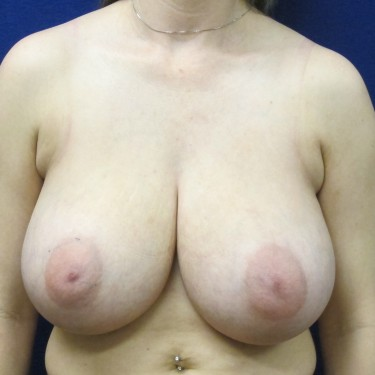 Patient Before Breast Reduction Surgery