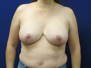 Patient After Breast Revision Surgery