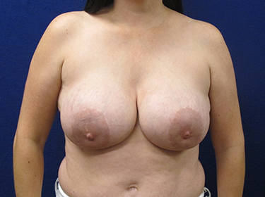 Patient Before Breast Revision Surgery