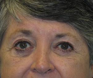 Patient After Brow Lift Surgery
