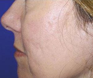 Patient After Fraxel Dual Laser Treatment