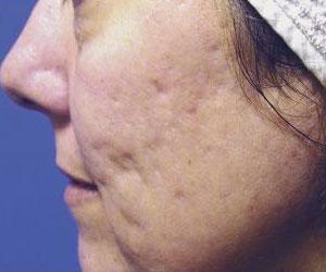 Patient Before Fraxel Dual Laser Treatment