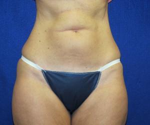 Patient Before Liposonix Surgery