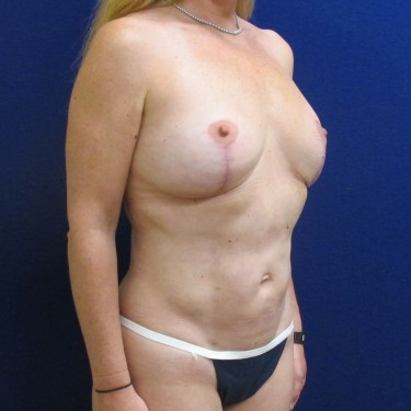 Patient After Liposuction Surgery