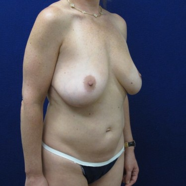 Patient Before Liposuction Surgery