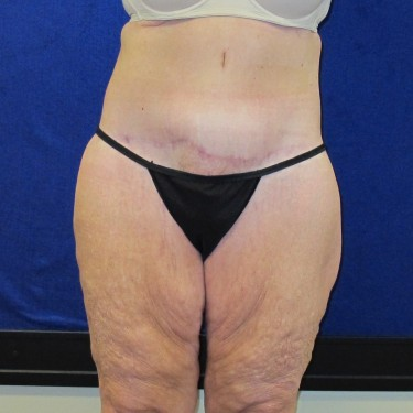 Patient After Lower Body Lift Surgery