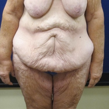 Patient Before Lower Body Lift Surgery