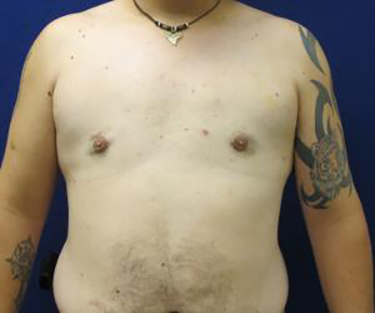 Patient After Male Breast Reduction Surgery