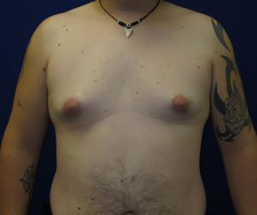 Patient Before Male Breast Reduction Surgery
