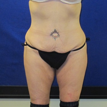 Patient Before Thigh Lift Surgery