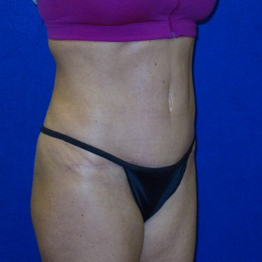 Patient After Tummy Tuck Surgery