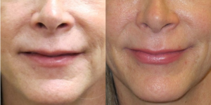 Before and After JUVÉDERM®