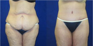 Before and After Lower Body Lift