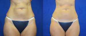 before-and-after-liposonix