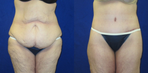 before-and-after-lower-body-lift