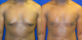 before-and-after-male-breast-reduction