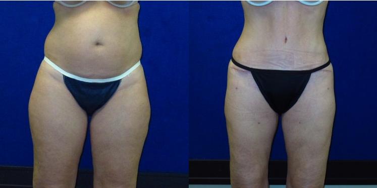 I Want to Get Bikini Ready! | Wilson Plastic Surgery