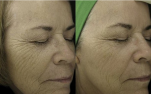 Before and After Fraxel by Dr. Wilson