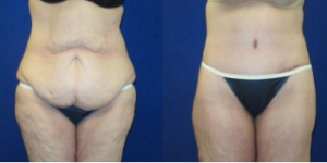 Tummy Tuck Patient of Dr. Wilson