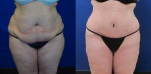 Wilson Liposuction Patient