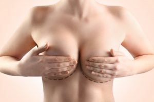 Plastic correction and Breast Reduction surgery