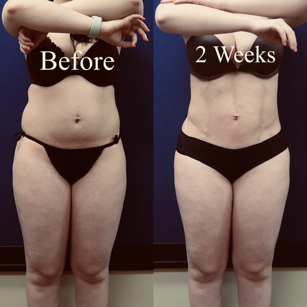 Before and after image showing the results of a liposuction patients 2 weeks after surgery