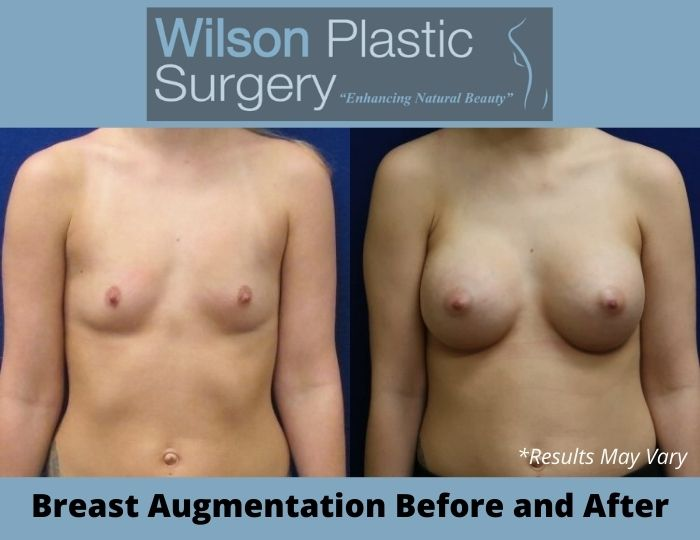 Before and after image showing the results of a breast augmentation performed in Huntsville, AL.