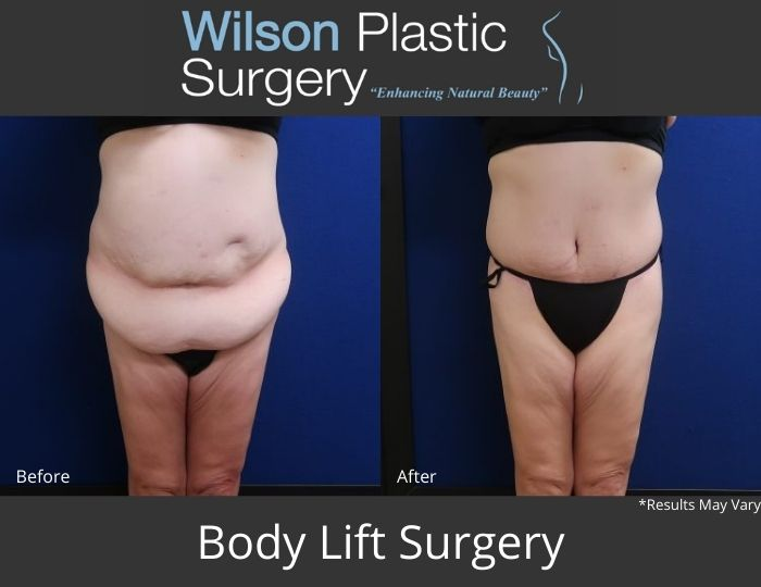 Before and after image showing the results of a body lift performed.
