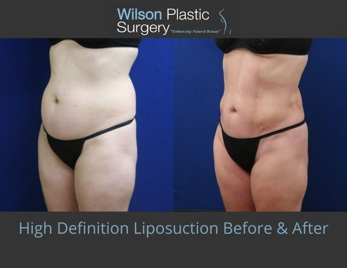 Before and after image showing the results of a high definition liposuction patient in Huntsville, AL.