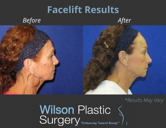 Before and after image showing the results of a facelift performed in Huntsville, AL.