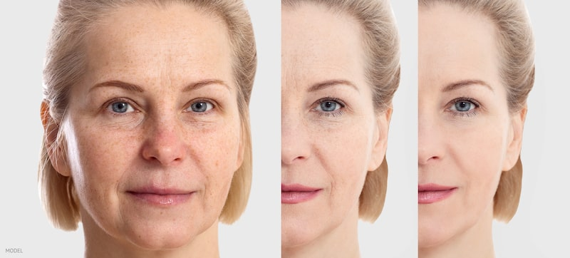 Woman with different extent of facial aging, side-by-side images.